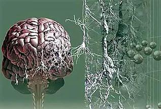 Исследователи Корнельского университета разработали игру, котрая по их ожиданиям поможет экспертам ускорить их усилия по исследованию болезни Альцгеймера.